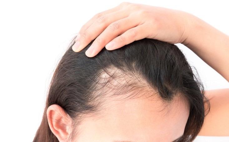 menopause hair loss medication